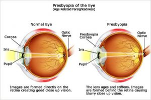 ht_eye_problems_presbyopia_0630